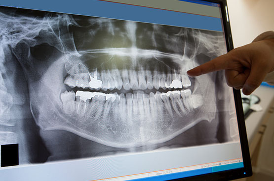 Importance of Panoramic X-ray