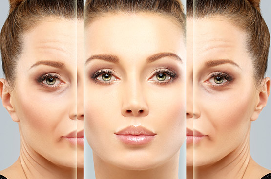 Botulinum toxin is a drug mainly