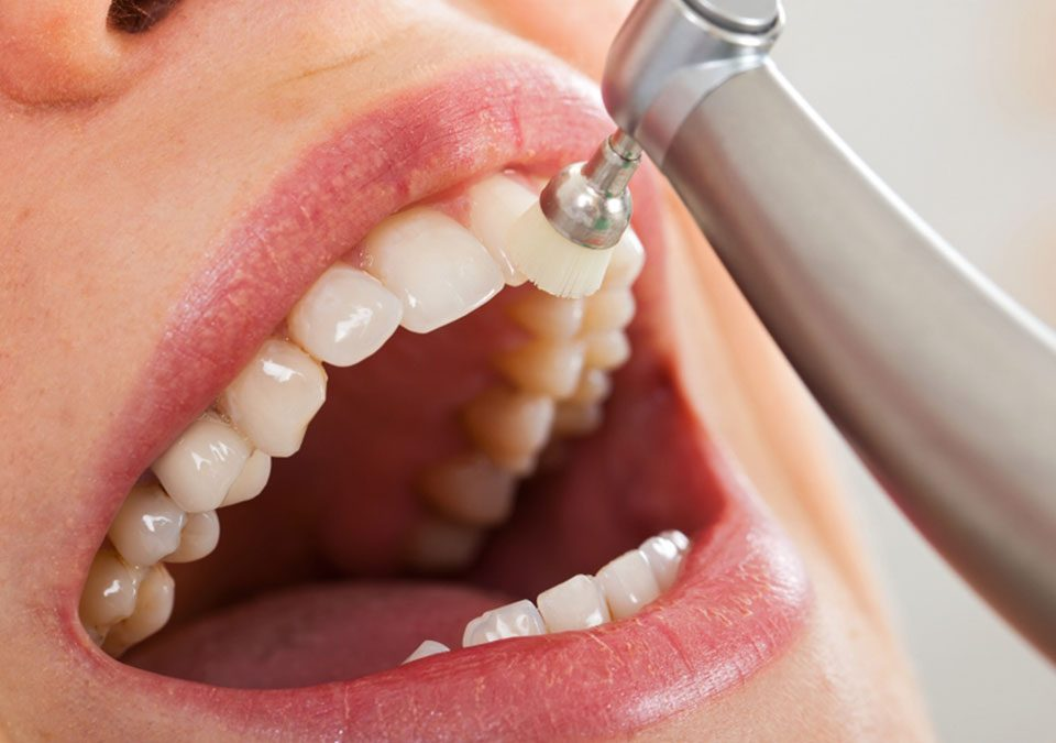how-long does dental cleaning
