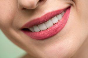 Teeth Spacers